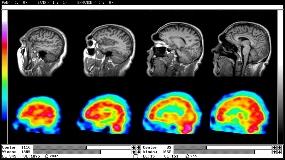 Imagini pentru nuclear medicine